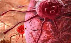 Медики назвали семь основных симптомов заболевания раком