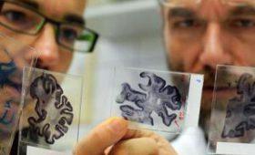 Ученые нашли неожиданный источник опаснейшего заболевания