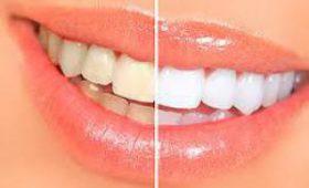 Зубные проблемы. Дэниел Рэдклифф раскрыл «зубной секрет» Гарри Поттера