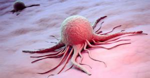 Эксперты назвали ранние симптомы рака
