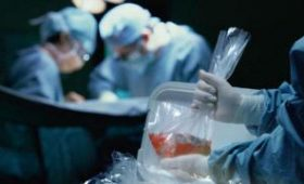 Рада приняла закон о трансплантации органов и тканей