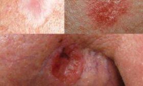 Девушка лишилась части носа из-за небольшого пятнышка