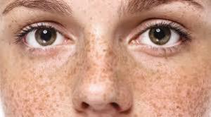 Как выявить скрытую болезнь по веснушкам и пигментации: читаем по лицу