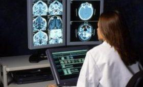 Ученые сделали прорыв в изучении головного мозга