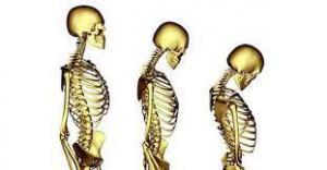 Ученые объяснили, как сигареты и алкоголь разрушают кости