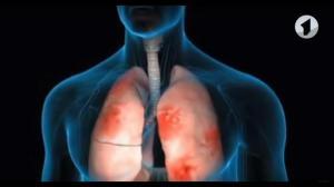 Ученые прогнозируют вспышку пневмонии в европейских клиниках