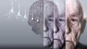 Болезнь Альцгеймера попробуют лечить ультразвуком